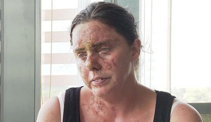 Un converti à l'islam jette de l'acide sur le visage d'une mère de 6 enfants : borgne et défigurée à vie