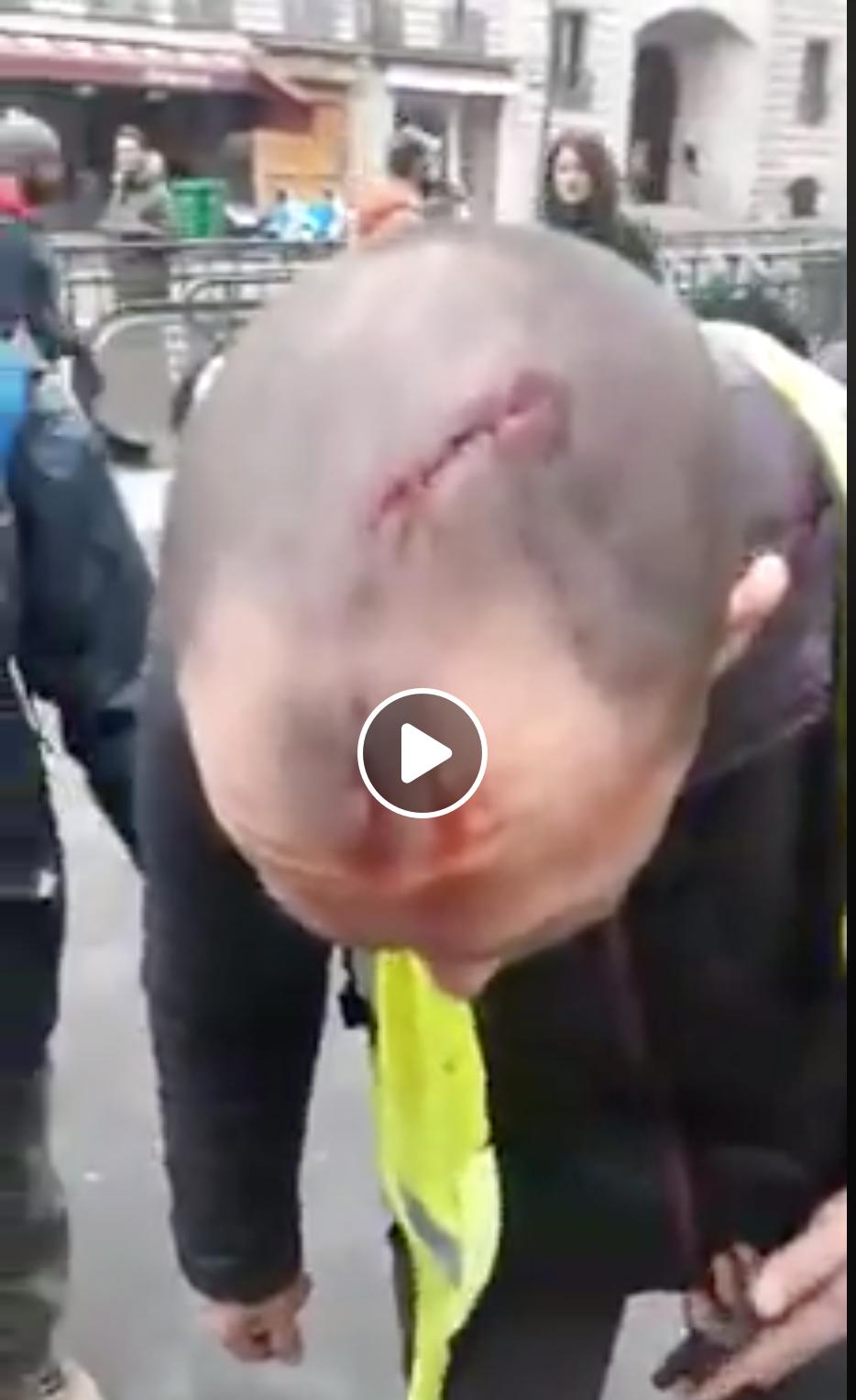 Les gendarmes responsables de ce coup de matraque mais on leur interdirait de s'en prendre aux Black Blocks ?