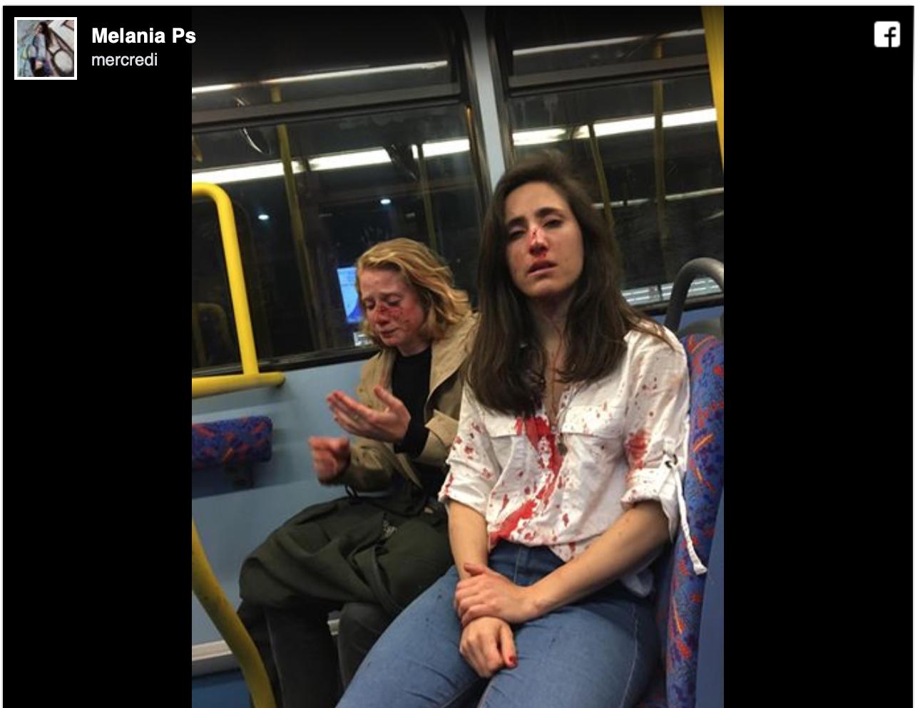 Aucune allusion à l'origine des 4 agresseurs d'un couple de lesbiennes à Londres ? Alors ils sont musulmans