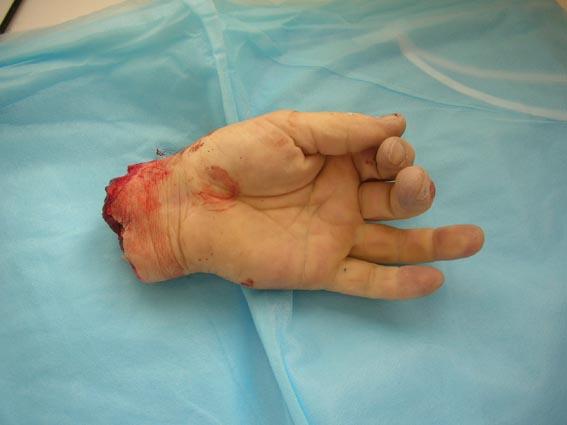 Châtellerault : le parquet refuse de dire si l'homme qui voulait couper la main d'un enfant est musulman