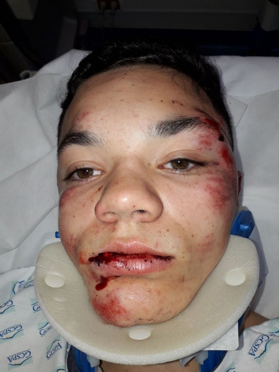 Grégory, lynché par 20 racailles, ne peut toujours pas retourner dans son lycée